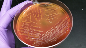 MSU scientists team up to study bovine microbiome role in antibiotic resistant bacteria