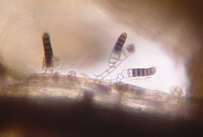 Conidia on root