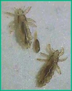 Head Lice And Eggs-236x300