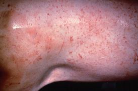 Sensitivity to mange mite in growing pig - NADIS
